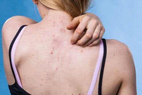 Choroby skóry - jak skutecznie im zapobiegać?