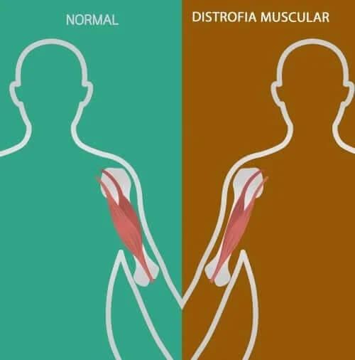 Zaburzenia nerwowo-mięśniowe: oznaki i objawy