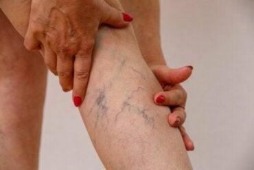 Zakrzepowe zapalenie żył: co to jest, objawy i leczenie