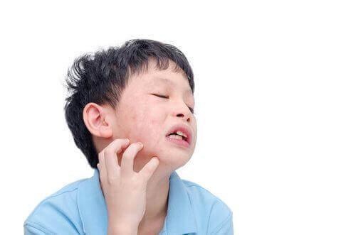 Chłopiec drapiący się po twarzy