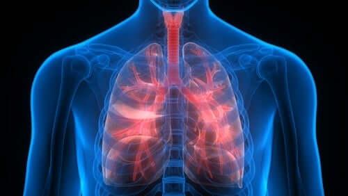 Zator w płucach