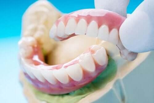 Mostek zębowy: typy, zalety i wady