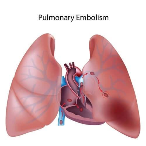 Choroba zakrzepowo-zatorowa płuc - wszystko, co musisz wiedzieć