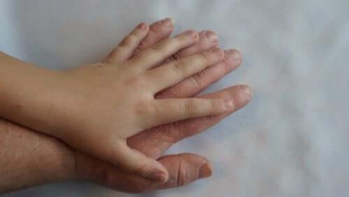 Akromegalia: co to jest i jakie są jej objawy