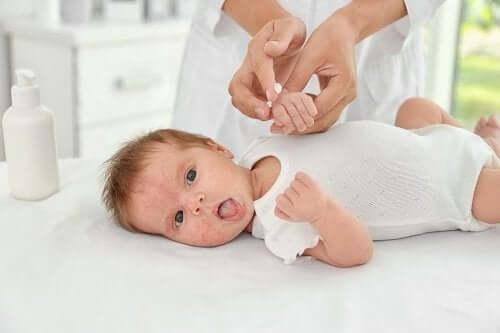 Trądzik niemowlęcy: przyczyny i leczenie