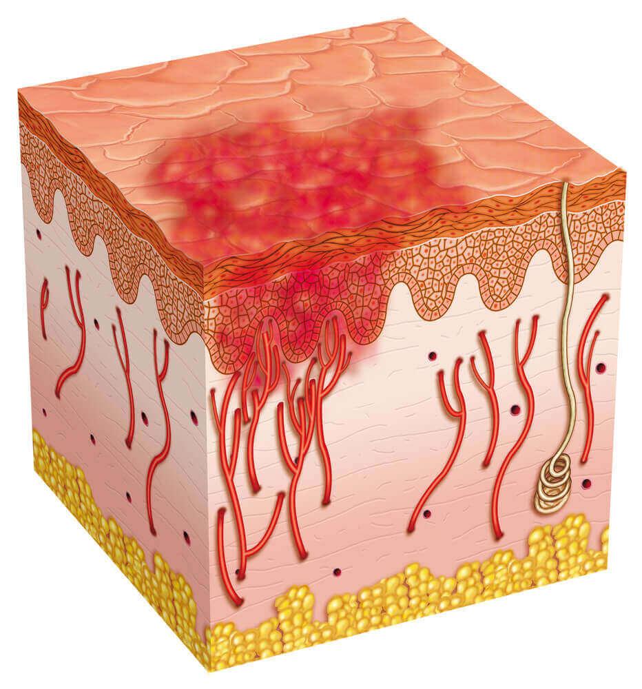 Wrzód skóry - rodzaje wrzodów