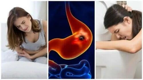 Wrzody układu pokarmowego