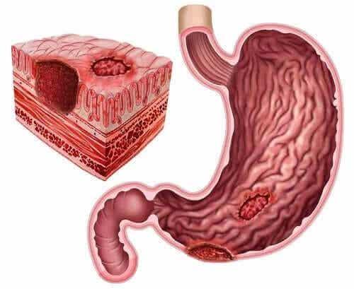 Wrzody układu pokarmowego i Helicobacter pylori