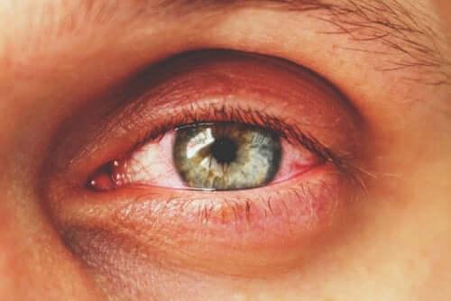 Zapalenie błony naczyniowej oka