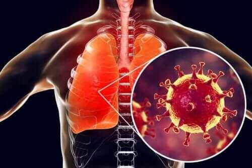 Infekcja płuc