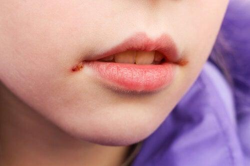 Owrzodzenie na ustach