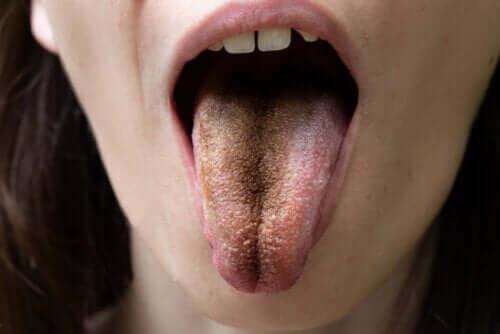 Czarny nalot na języku - czy wiesz, skąd się bierze?