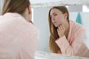 Trądzik hormonalny: przyczyny i sposoby leczenia
