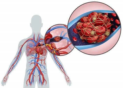 Zator tętnicy płucnej - schemat
