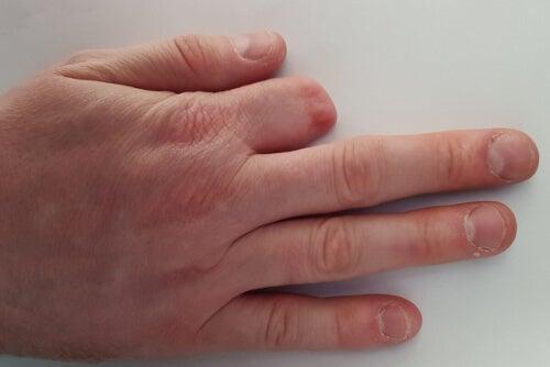 Amputowany palec