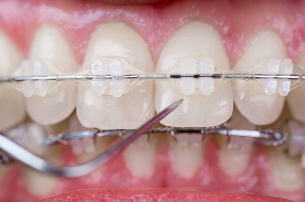 Problem ten leczy się chirurgicznie lub aparatem stałym.