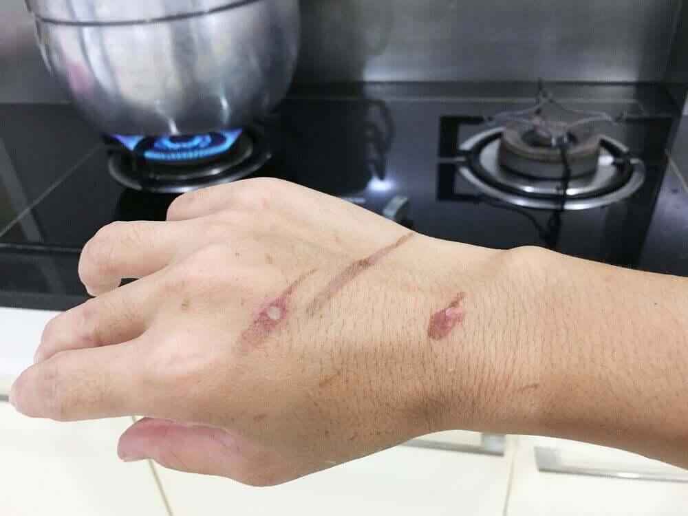 Poparzenia wrzątkiem i parą zdarzają się zwykle podczas pracy w kuchni.