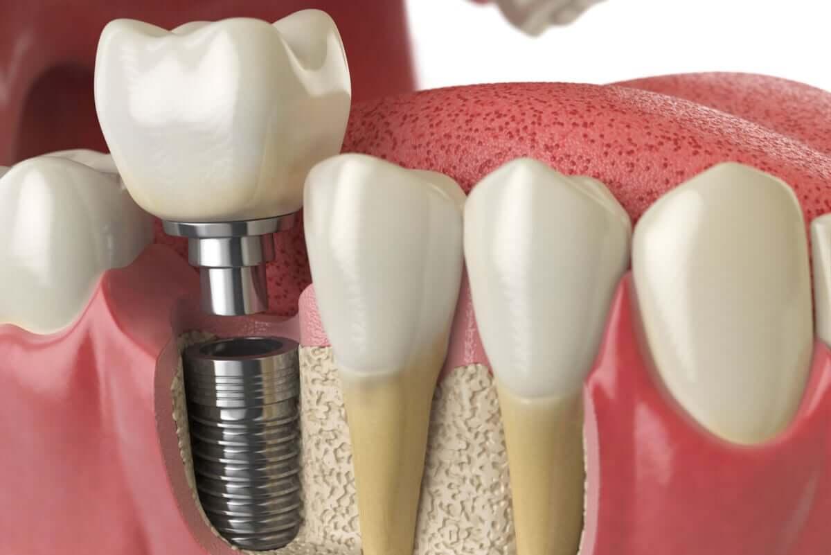 Implant zębowy to materiał biosyntetyczny wszczepiony w kość.