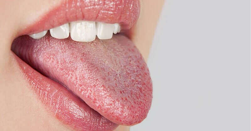 Kobieta z piekącym językiem