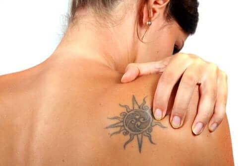 Czy rzeczywiście można usunąć tatuaż?
