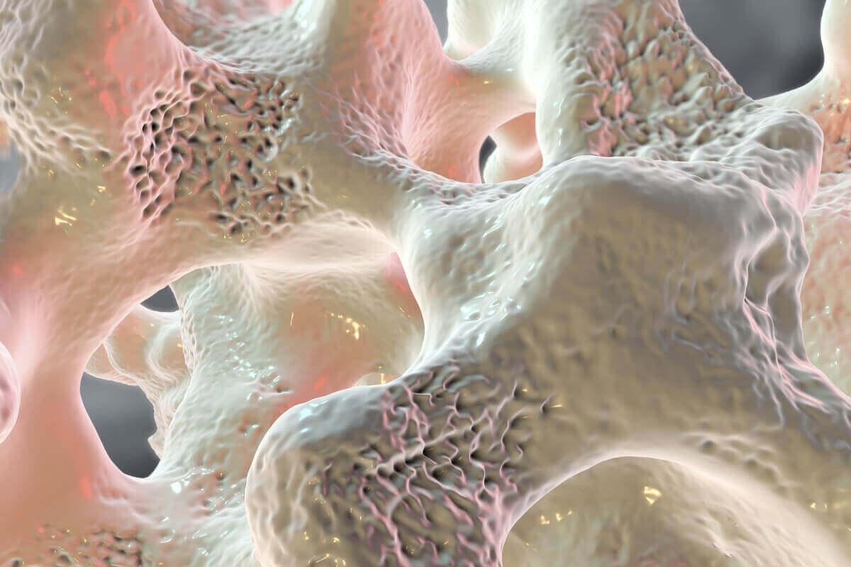 Kość składa się z bardzo twardej zewnętrznej części i z bardziej włóknistego wnętrza. Stłuczenie obejmuje także głębszą warstwę kości.