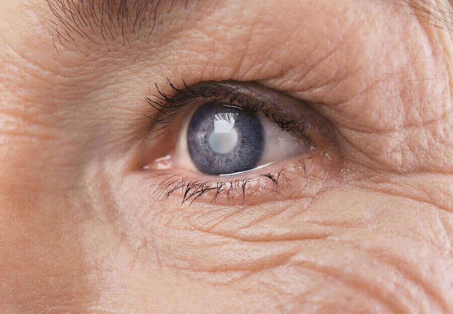 Retinopatia cukrzycowa - jak cukrzyca wpływa na wzrok?