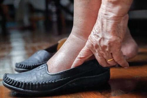 5 sposobów na spuchnięte nogi w upalne dni