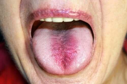 Zespół pieczenia w jamie ustnej: rozpoznanie i leczenie