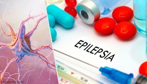 Niekontrolowane ataki śmiechu lub płaczu to odmiana epilepsji.