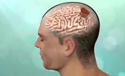 Guz mózgu może być przyczyną tego typu reakcji.