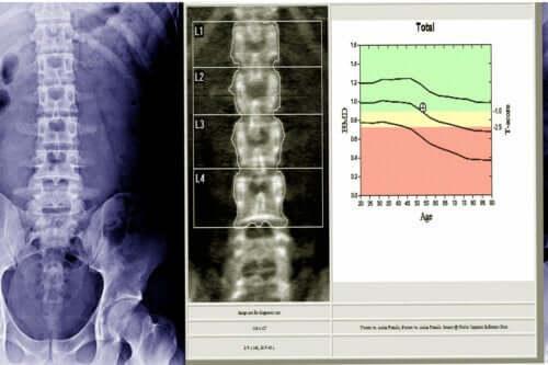 Densytometria kości: jak i dlaczego to się robi