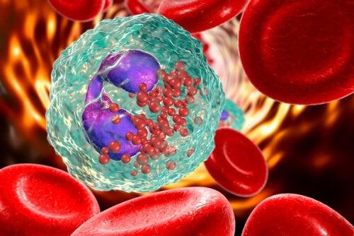Komórki krwi - aplazja rdzeniasta