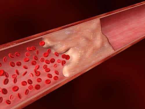 Wapnienie tętnic - dowiedz się więcej na jego temat!