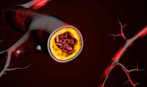 Tkanka tłuszczowa w naczyniu krwionośnym
