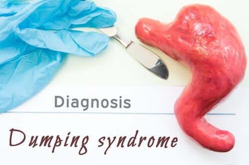 Zespół dumping, czyli syndrom poposiłkowy - na czym polega?