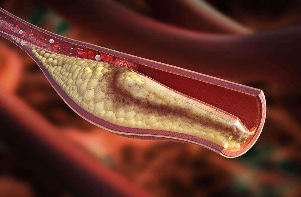 Zły cholesterol, LDL, blokuje tętnice, a dobry, HDL, usuwa jego nadmiar z organizmu.