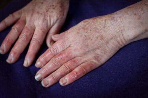 Choroba Bürgera: przyczyny, objawy i leczenie