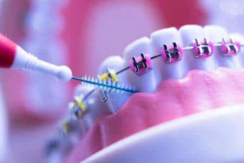 Ortodoncja - 8 wskazówek skutecznego leczenia
