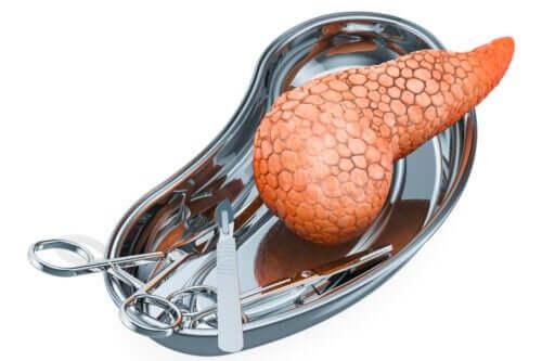 Przeszczep trzustki: przyczyny transplantacji i ryzyko