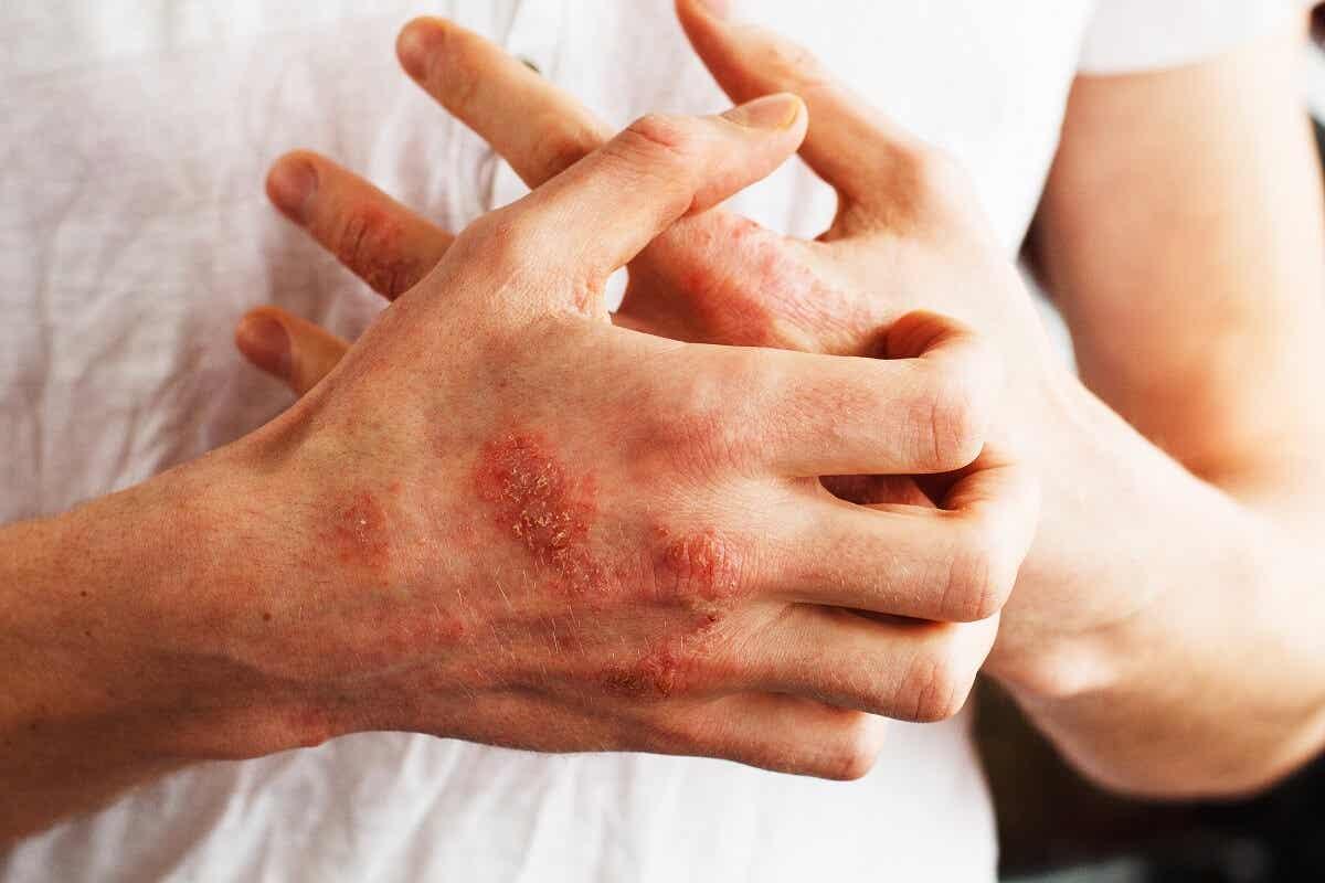 Łuszczyca osłabia skórę i zwiększa podatność na infekcje.