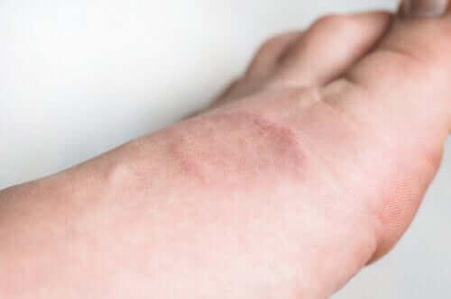 Objawy i leczenie ziarniniaka obrączkowatego