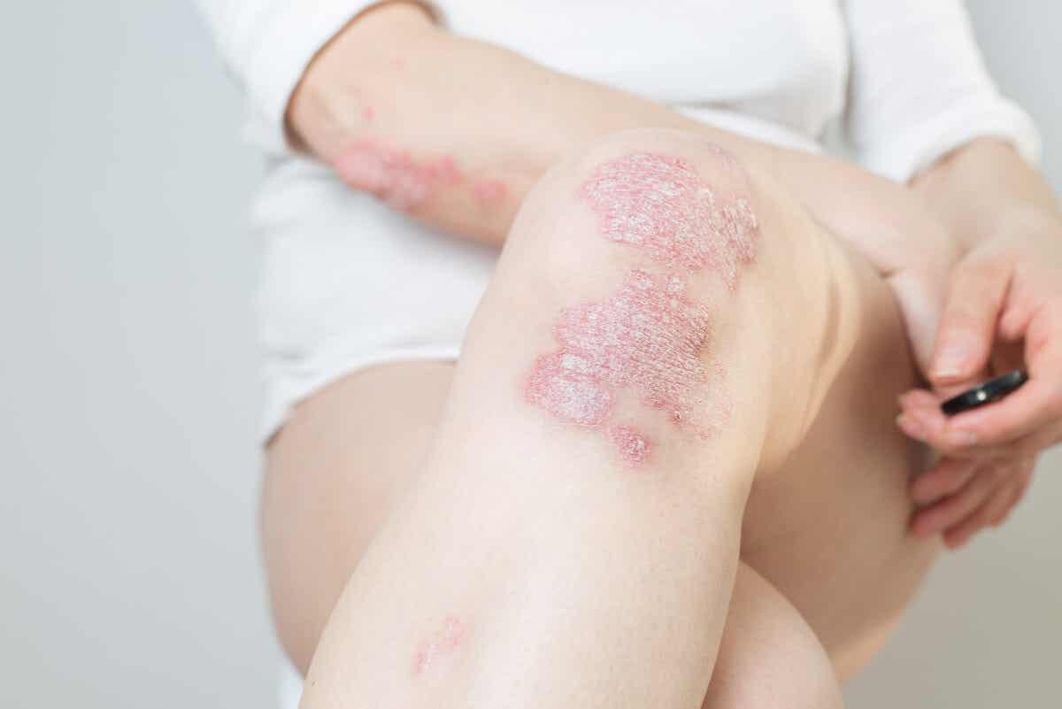 Łuszczyca i choroba wieńcowa mogą być ze sobą powiązane