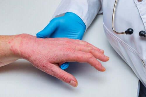 Łuszczyca i choroba wieńcowa - co je łączy?
