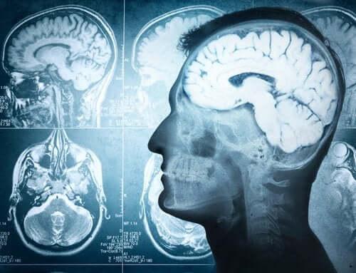 Części mózgu i ich funkcje - odkryj zagadki naszego umysłu