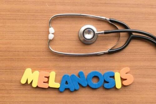 Melanoza palaczy - czy wiesz, na czym polega ta choroba?