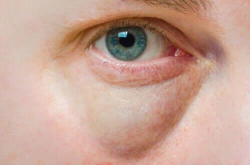 Spuchnięte powieki: przyczyny i leczenie