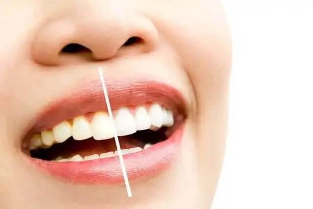 Przyczyny przebarwień zębów