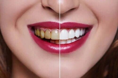 Przyczyny przebarwień zębów - czy znasz najważniejsze z nich?