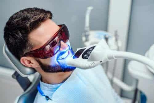Metody wybielania zębów - rodzaje i czas trwania efektu