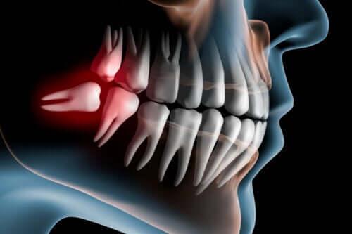 Czym są zatrzymane zęby mądrości i jak się je leczy?